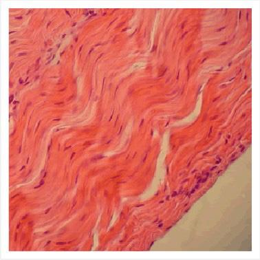 fibra colágeno