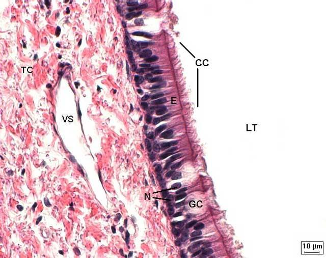 tecido epitelial de revestimento pseudoestratificado colunar ciliado da traqueia