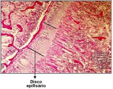 Disco Epifisário: Ossificação Endocondral