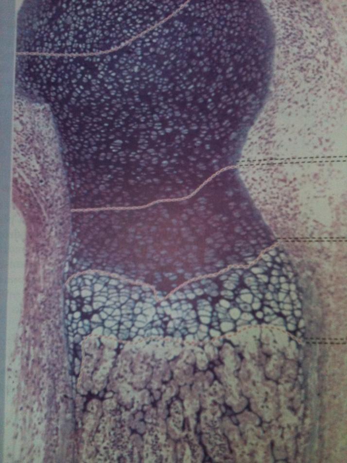 Zona de Ossificação Endocondral