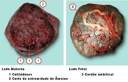 Placenta: Lado Materno e Lado Fetal