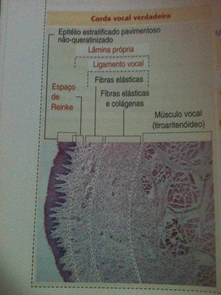 Histologia - Corda Vocal Verdadeira